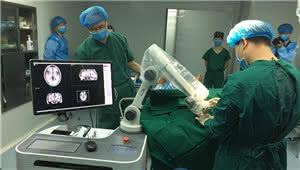 脑病患者福音!无框架脑立体定向机器人落户昆明
